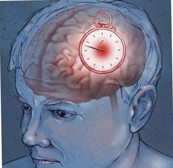 Atherosclerosis.